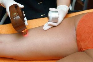 hair-removal-4188610_640