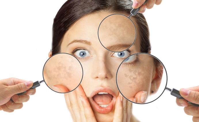 Macchie solari sul viso, cosa fare e come prevenirle