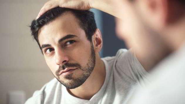 trappianto capelli